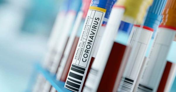 74 нови случаи, двајца починати од COVID-19