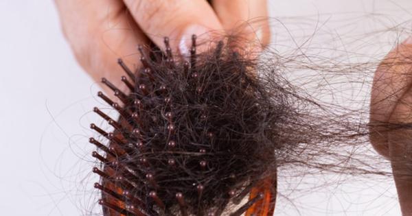 Истражување: Луѓето кои прележале COVID-19 се соочуваат и со опаѓање на косата